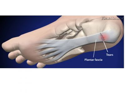 plantar fasciitis steroid injection aftercare