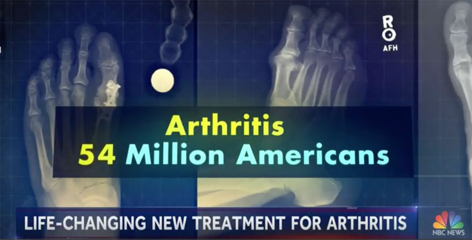 NBC News: New Arthritis Treatment
